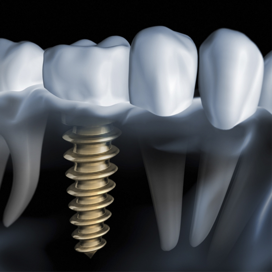 Implantes dentales en un día